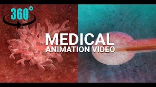 Interactive 360 Virtual Reality Medical VR Animation (3D Anaglyph videos) - Cancer Tumor Treatment