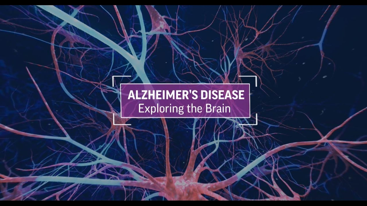 Alzheimer's Disease: Exploring The Brain